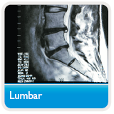 MRI of lumbar spine